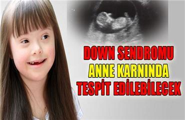 Down Sendromu anne karnında tespit edilebilecek