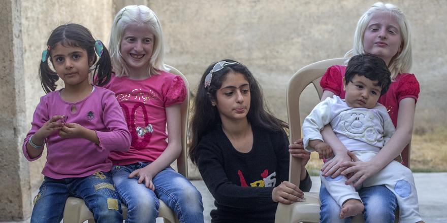Albino ikizleri neşe kaynağı