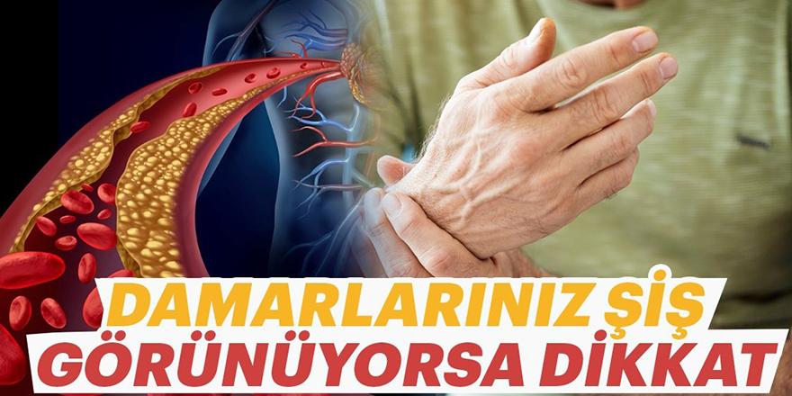 Vücuttaki damarların belirginleşmesinin nedenleri